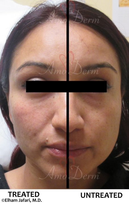 Cheeks Liquid Facelift and Dark Circles Under Eyes