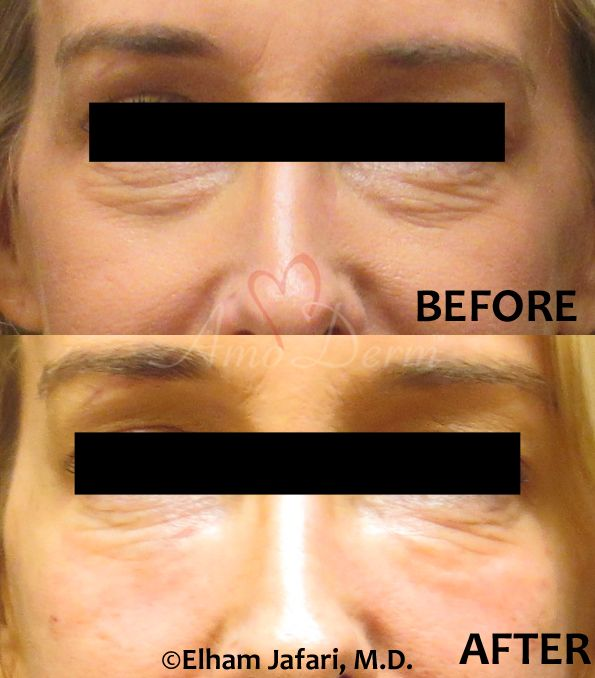 Dark Circles Under Eyes and Cheeks Restoration