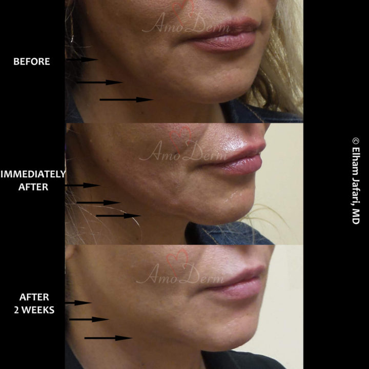 Filler for lower face & jawline sculpting & contouring to create a chisled jawline (Voluma, Bellafill, Radiesse)