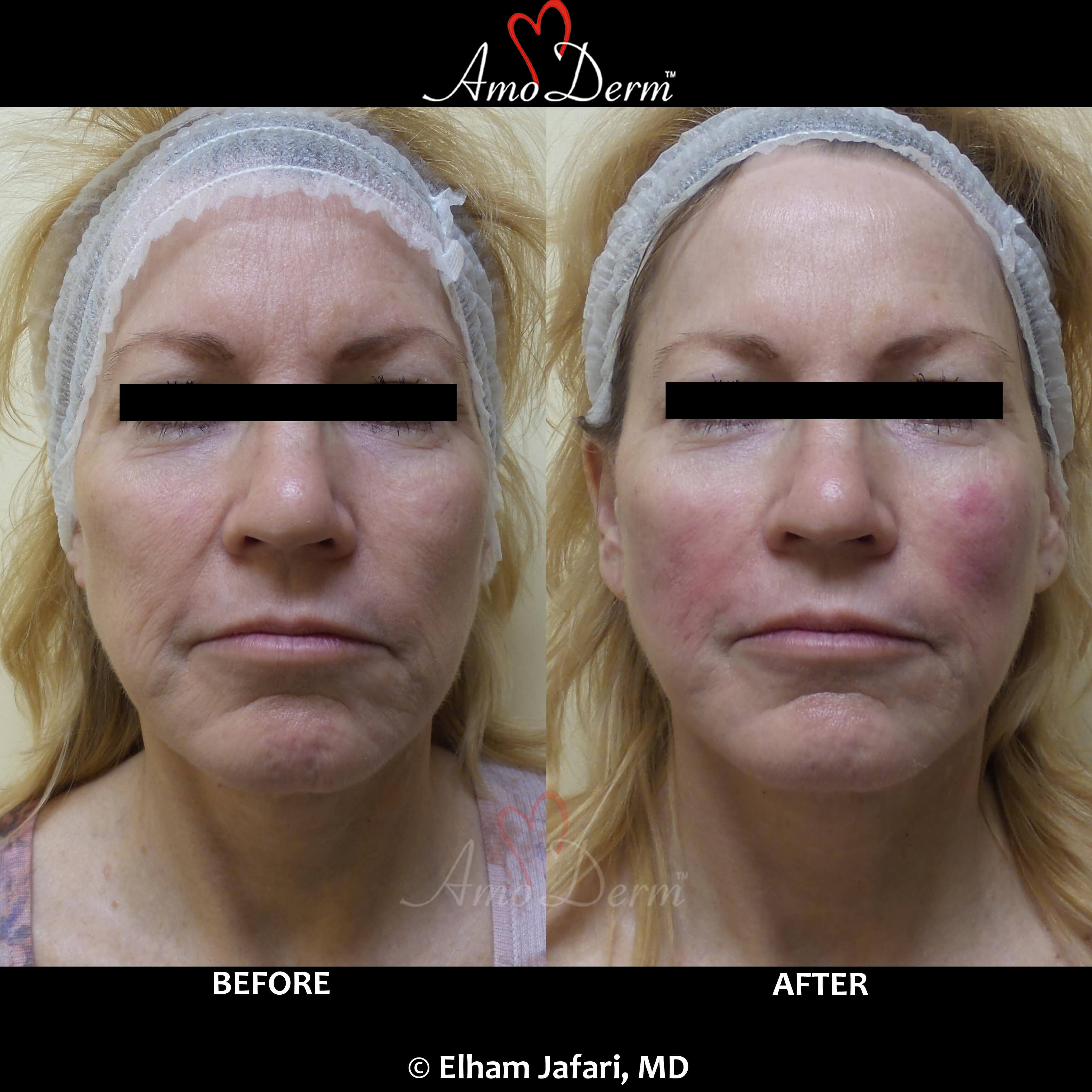 Thread Lift - Non-surgical Cosmetic Procedure in Irvine