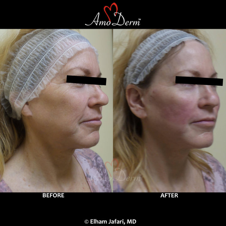 Liquid Facelift with PDO Thread (thread lift) in mid face (cheeks and nasolabial folds, laugh lines)