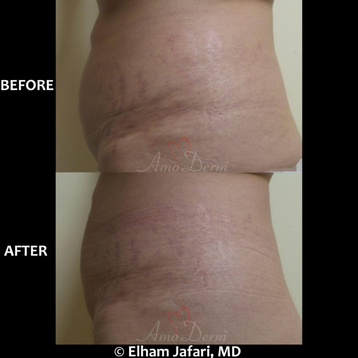 Treatment of stretch marks with Fractional CO2 laser (CO2 Laser Skin Resurfacing)