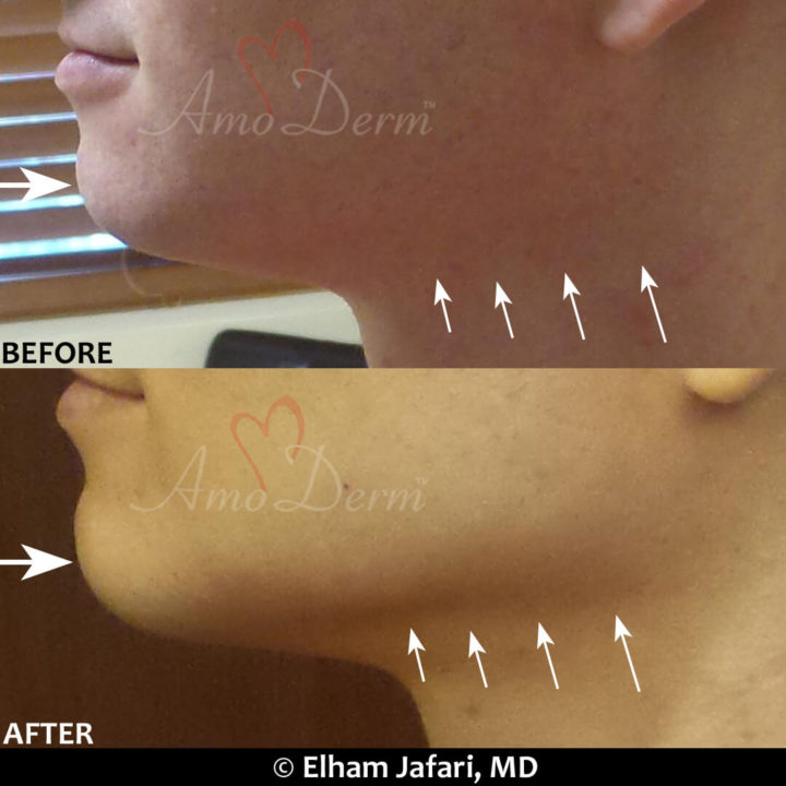 Jawline contouring and chin augmentation with dermal fillers