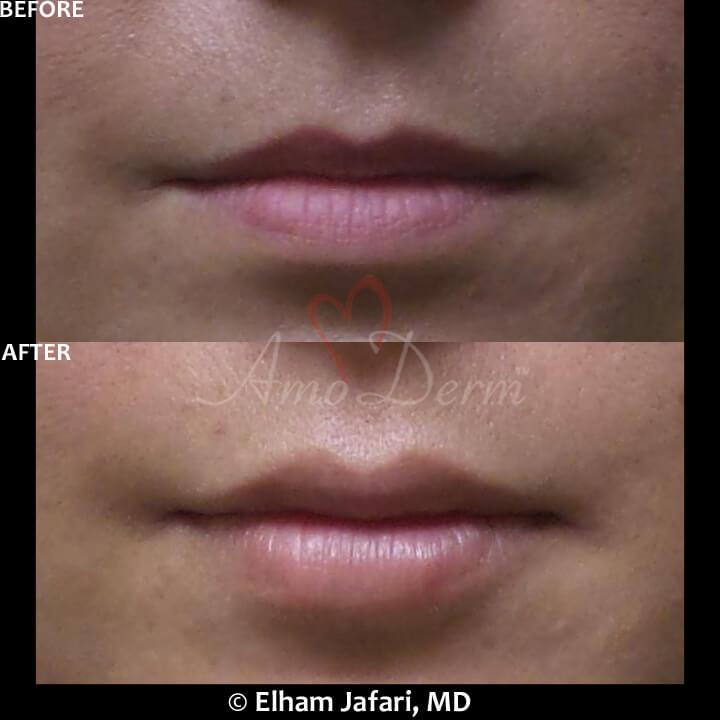 Lip Augmentation Irvine - Lip Injections, Lip Fillers
