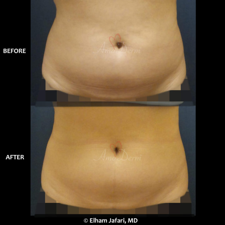 SculpSure Stubborn Fat Reduction Before and After Pictures