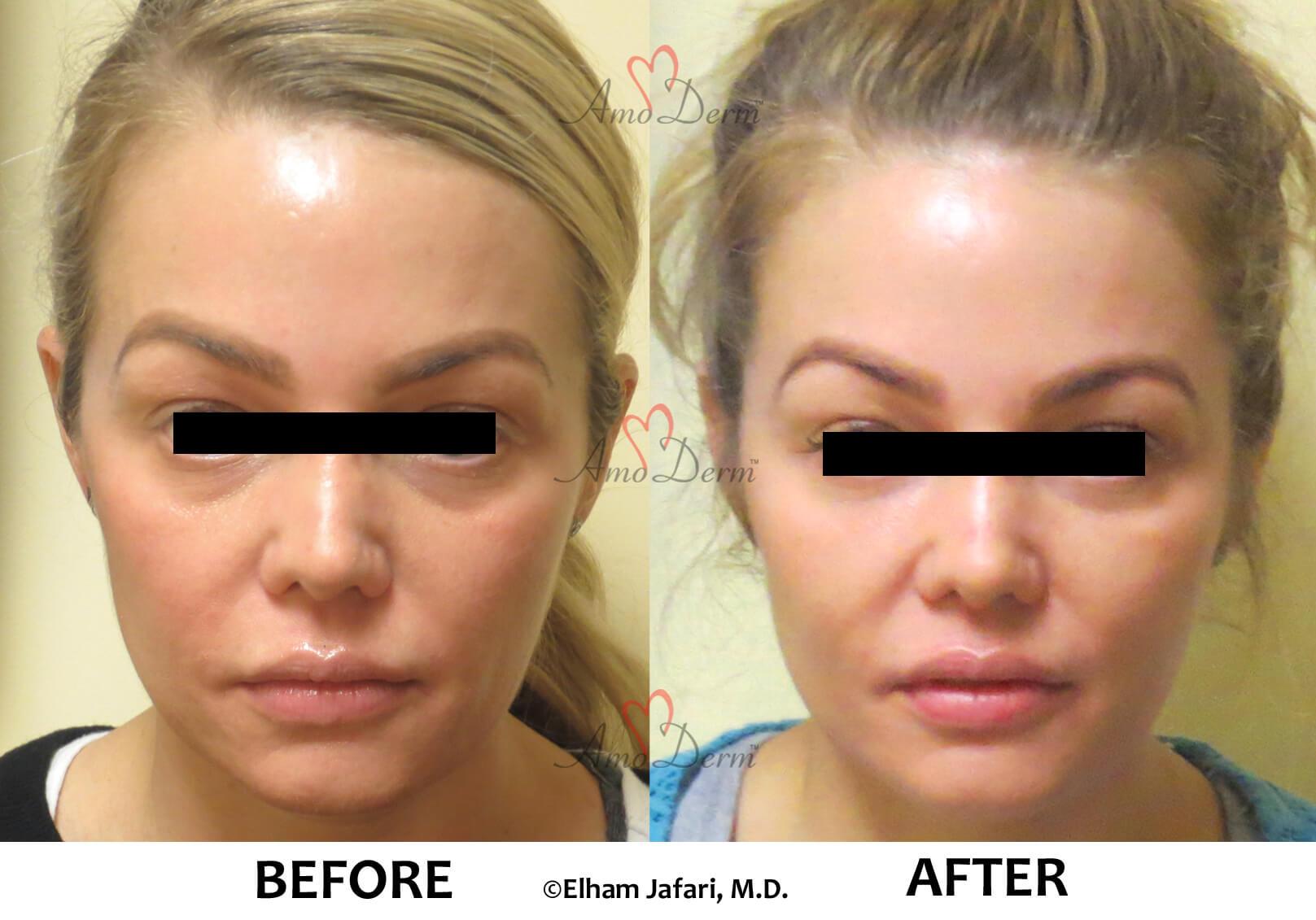 Treat dark circles & bags under eyes using fillers & lasers
