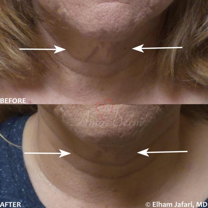 Nonsurgical skin tightening and lifting with Ultherapy