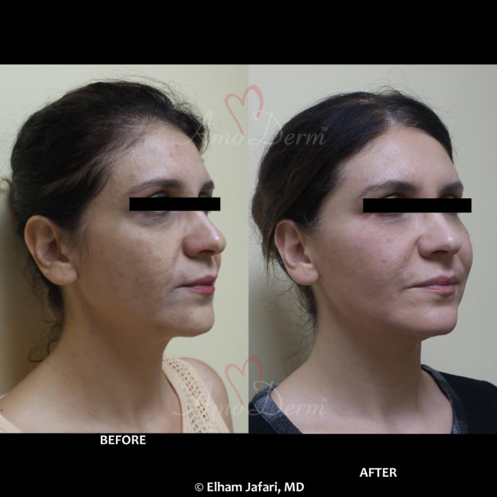 Liquid Facelift with filler injection in cheeks, under eyes and nasolabial folds (laugh lines)