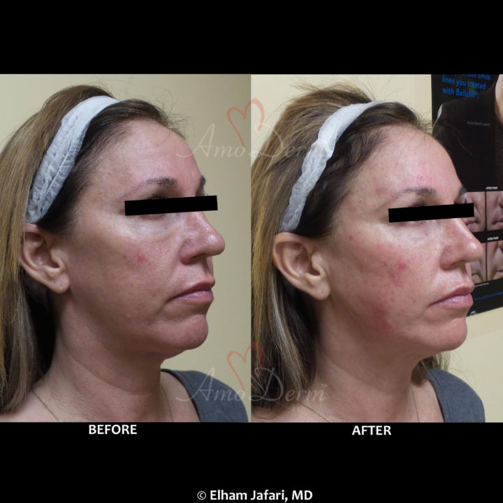 Liquid Facelift with filler injection in jawlines, necklines, temples, under the eyes & cheeks