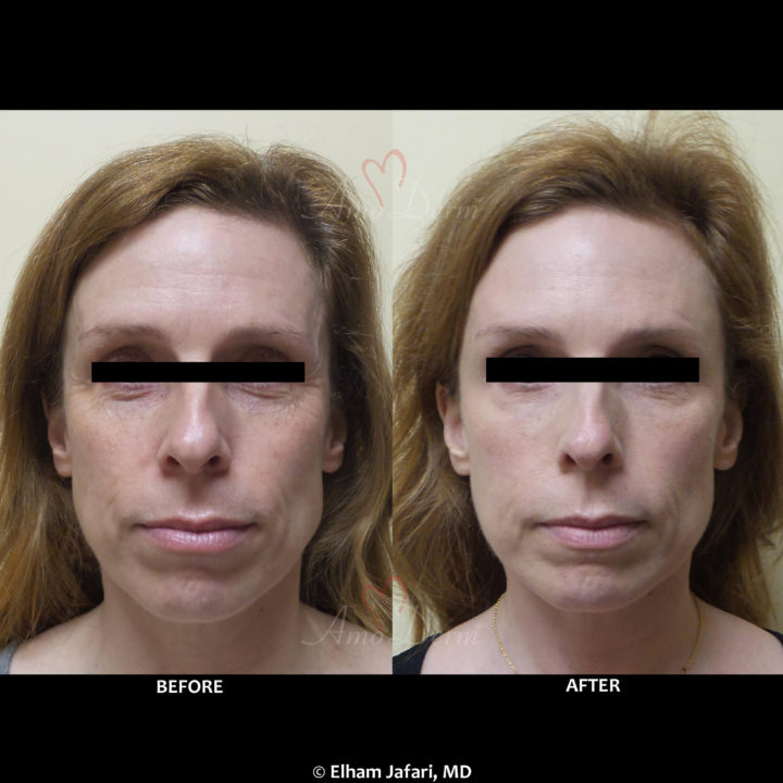 Liquid Facelift with filler in temples, cheeks & under eyes, forehead and crow's fit