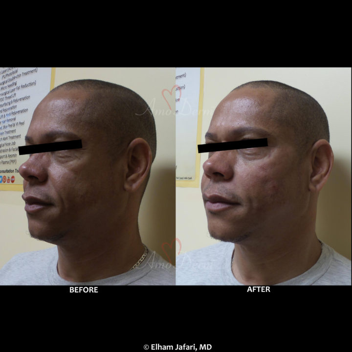Liquid Facelift with filler injection in cheeks and nasolabial folds (laugh lines)