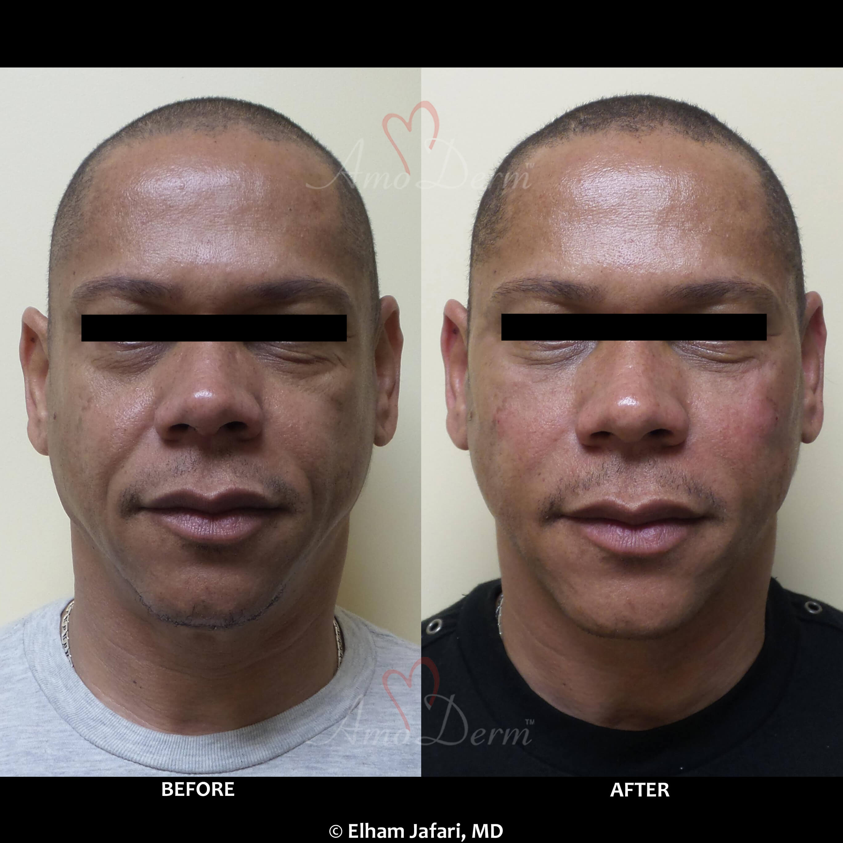 Nasolabial Folds - Common Concerns known as smile lines or
