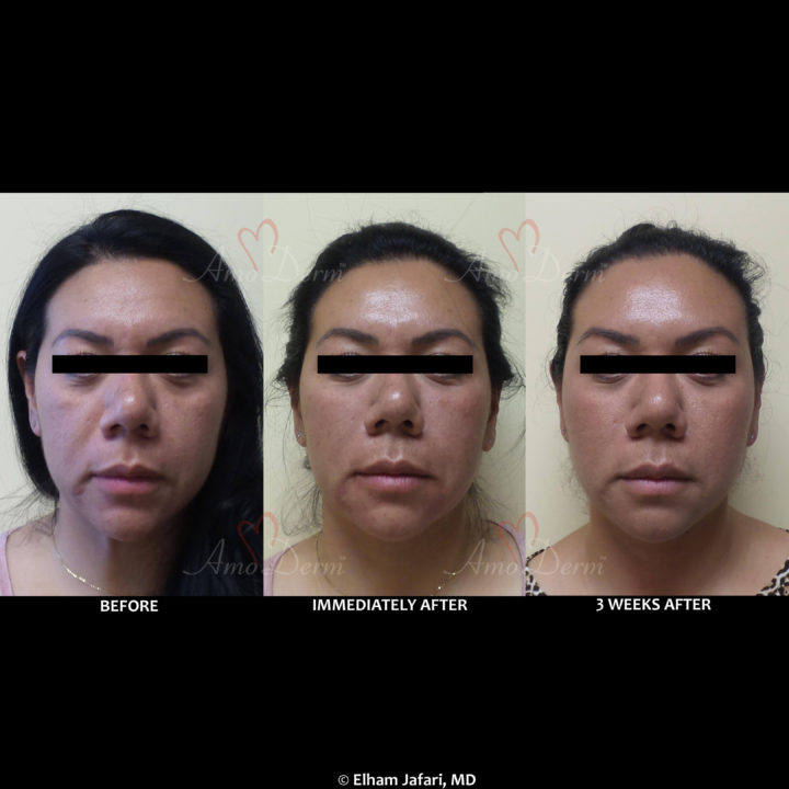 Liquid facelift with Botox in forehead & filler in under the eyes, cheeks, & marionette lines