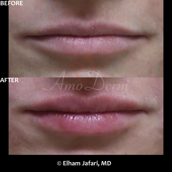 Lip Augmentation Irvine - Lip Injections, Lip Fillers