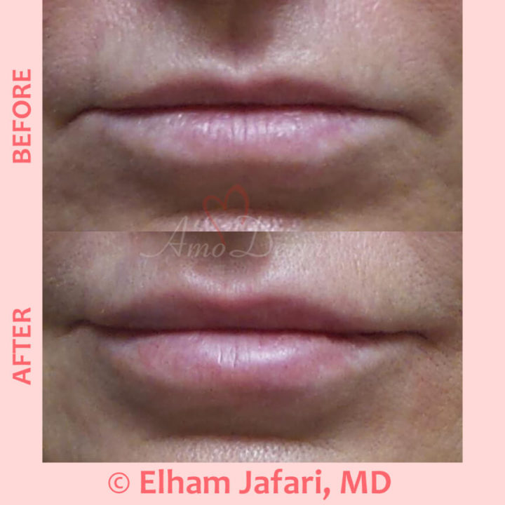 Lip augmentation with filler injection