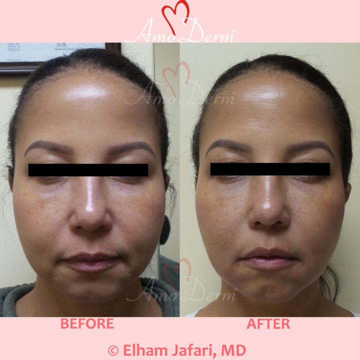 Liquid Facelift with injection of fillers in nasolabial folds & marionette lines