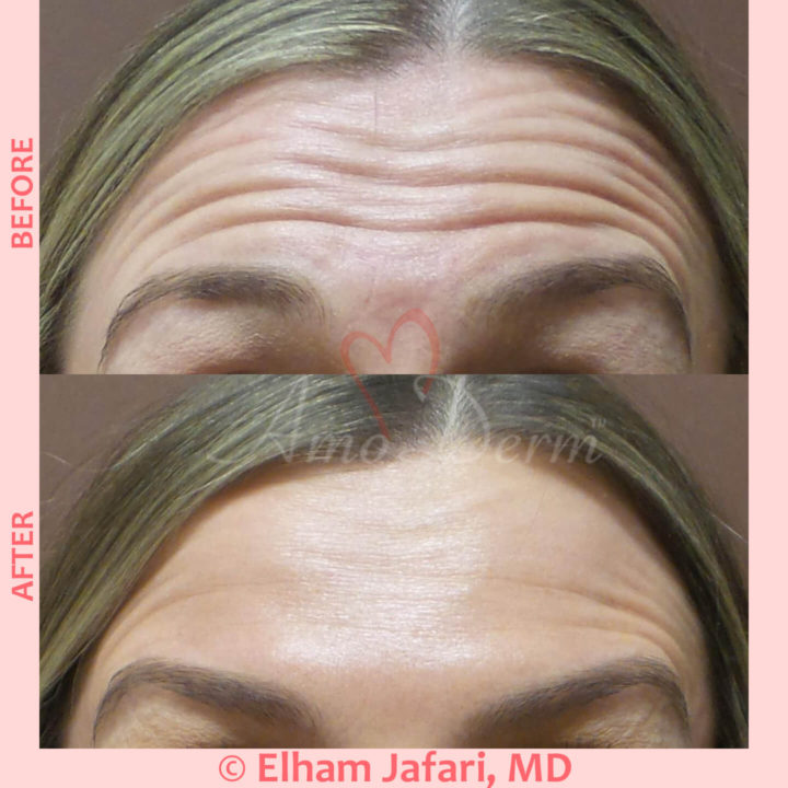 Botox injection for treatment of lines and wrinkles in forehead, glabella & frown lines