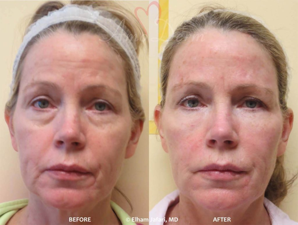 4D Under Eye Lift to treat dark circles under eyes & contour cheeks