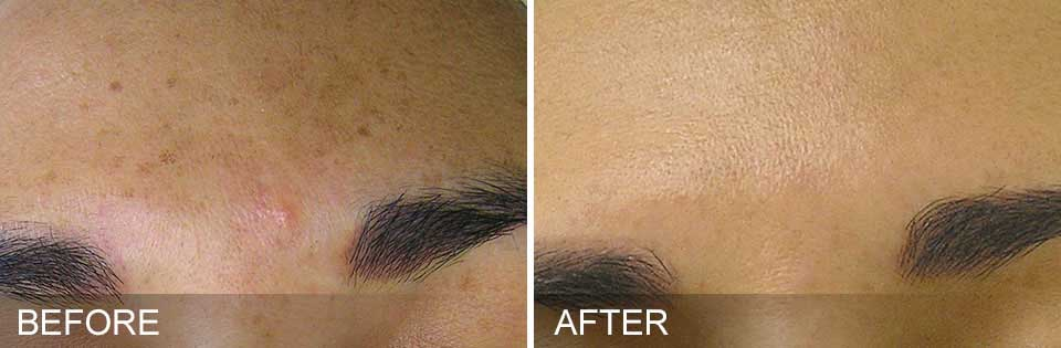 HydraFacial Treatment before-after real picture results