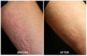 Stretch Mark Removal Arms Before After Treatment