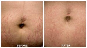 Stretch Mark Removal Belly Before After Treatment