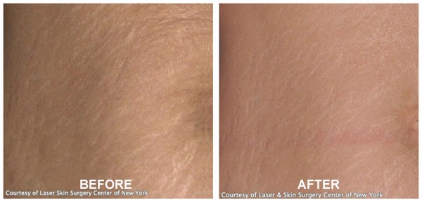 Stretch Mark Removal Body Before After Treatment