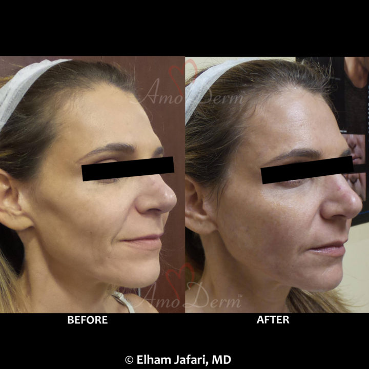 Liquid Facelift with filler to treat hollowness between cheek & jaw, nasolabial folds and marionette lines