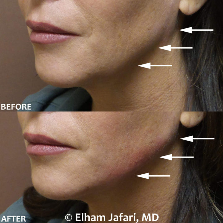 Filler for jawline sculpting and contouring to create a chisled jawline