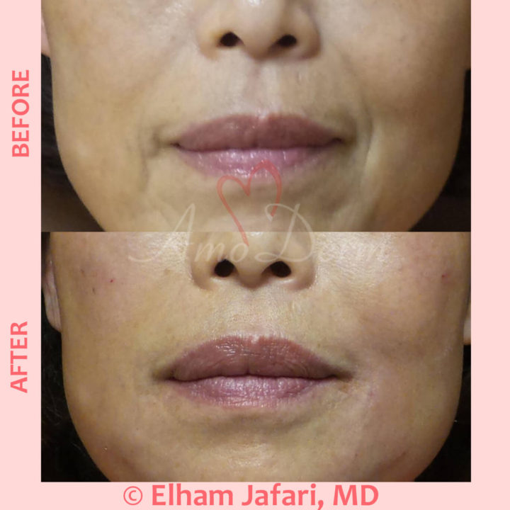 Treatment of nasolabial folds and marionette lines