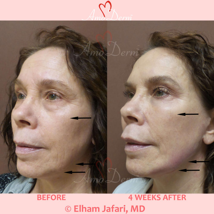 Liquid Facelift with Botox & filler injection in jawlines, under the eyes & cheeks
