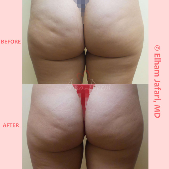 Skin tightening and cellulite treatment with Venus Freeze (radiofrequency)