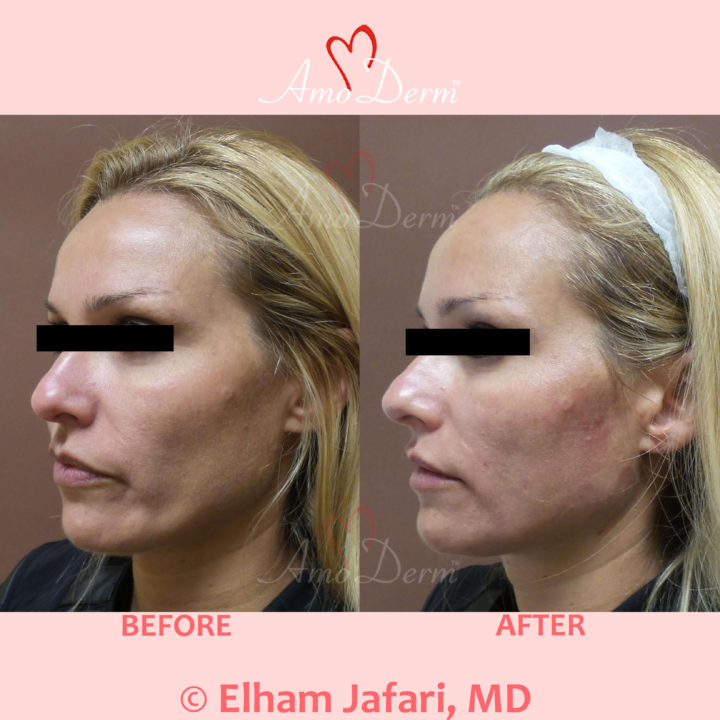 Liquid Facelift with PDO Thread in mid and lower face