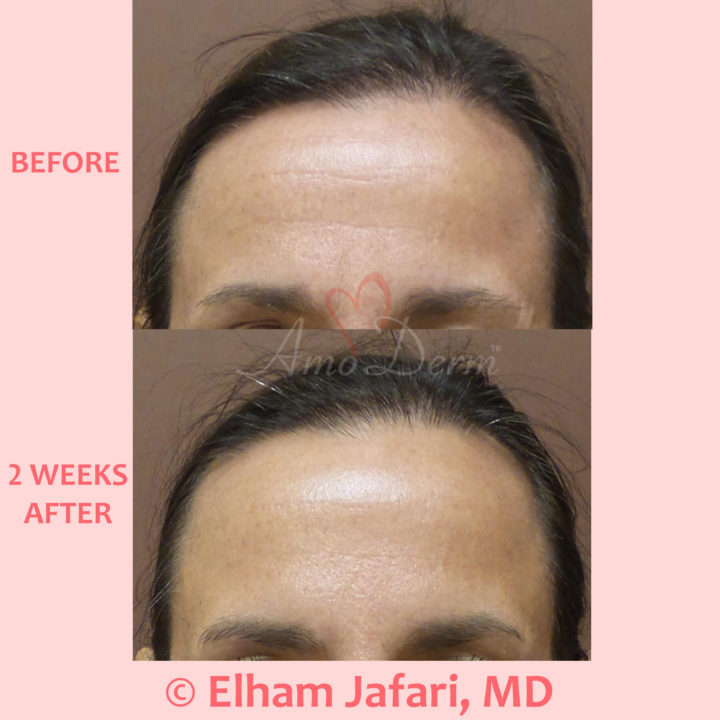 Botox injection for treatment of lines and wrinkles in forehead