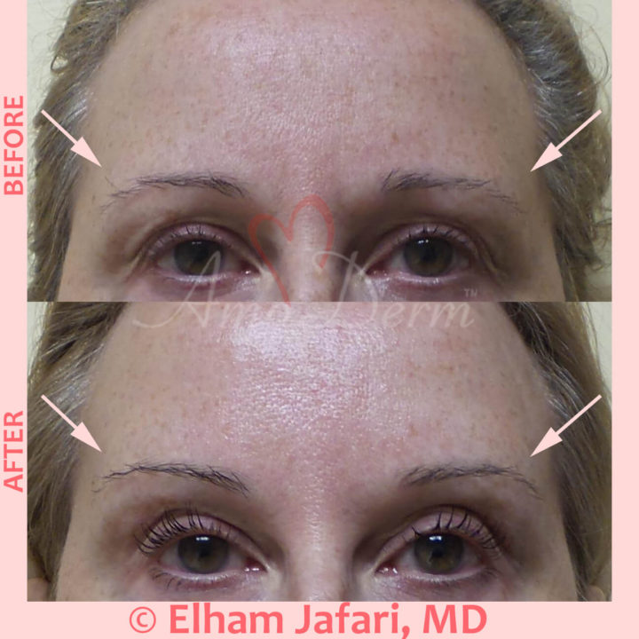 Non-surgical eyebrow lift with dermal filler