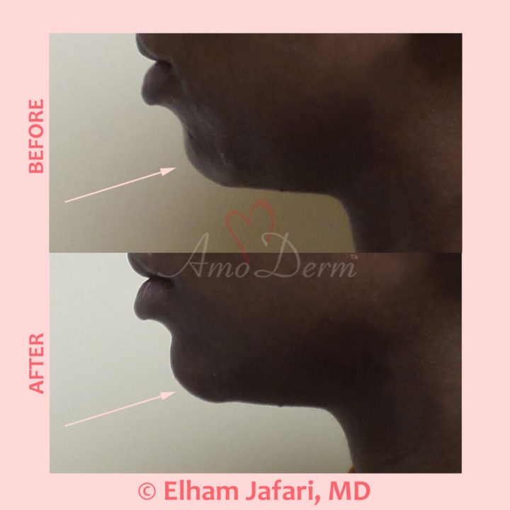 Non-surgical chin augmentation and enhancement with filler injection
