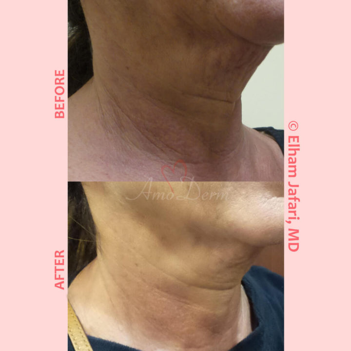Non-surgical neck lift, skin tightening and rejuvenation with Ultherapy