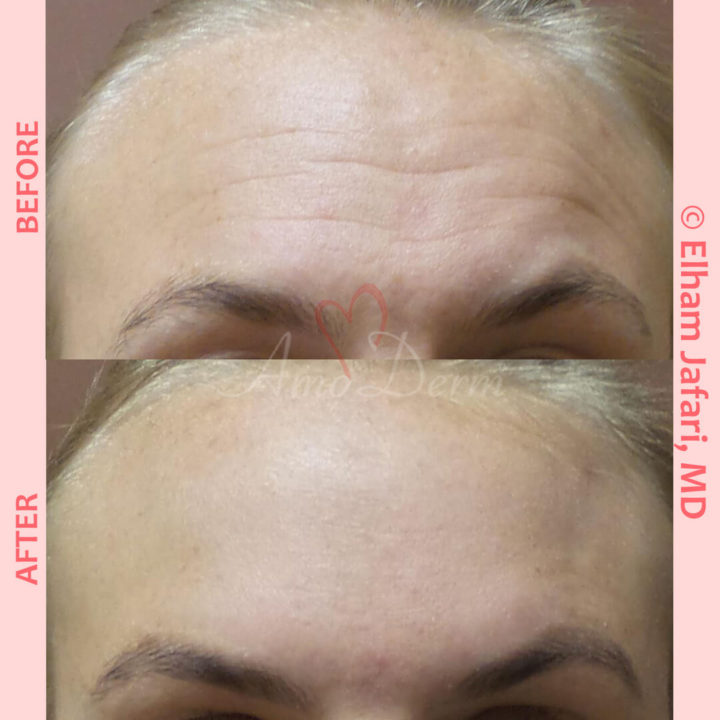 Treatment of lines and wrinkles in forehead, glabella, frown lines & crows feet