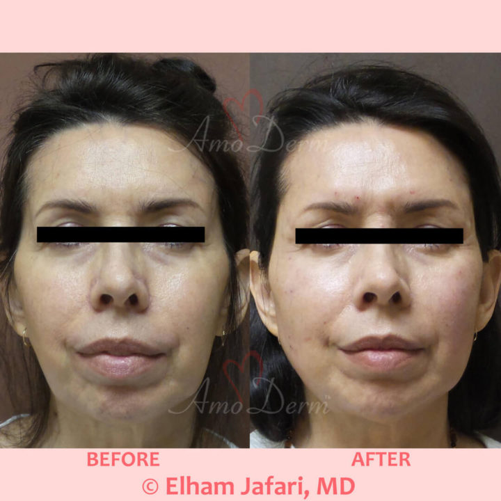 Liquid Facelift with filler injection in temples, cheeks and jawlines