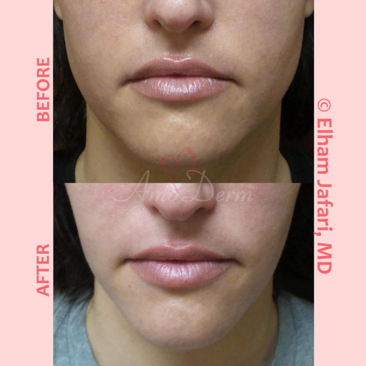 Jaw slimming with Botox, Dysport, Jeuveau or Xeomin injection into masseter muscle
