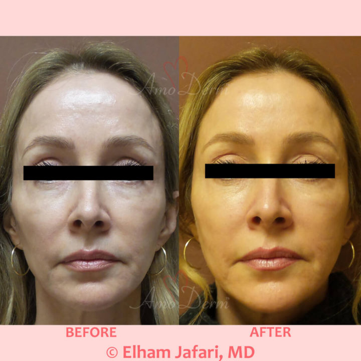 Liquid Facelift with filler injection in temples, cheeks and nose & Botox between eyebrows, crow's feet, forehead & upper lip