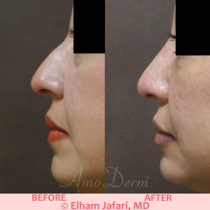 Nonsurgical nose job and chin augmentation and restoration with fillers