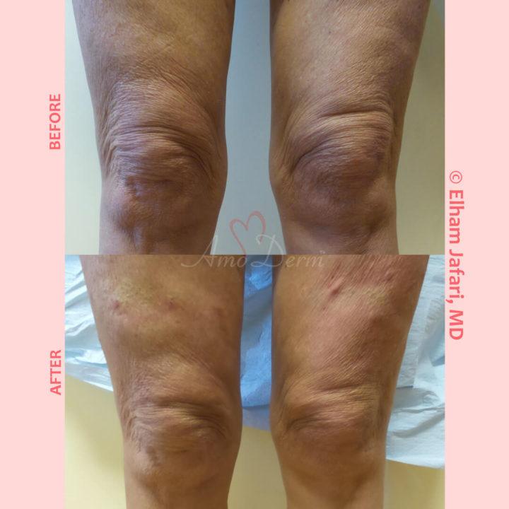 PDO Thread Lift for non-surgical knee cap lift