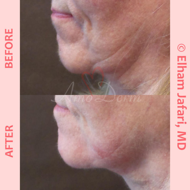 Non-surgical chin augmentation and Jawline contouring and restoration with fillers