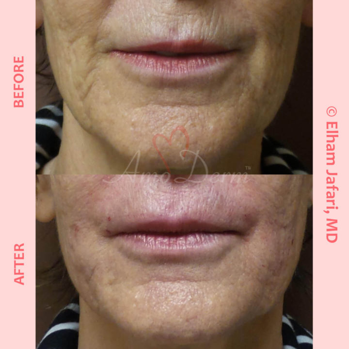 Treatment of marionette lines, nasolabial folds and upper lip lines with Juvederm, Vollure, Restylane or Bellafill injected with cannula