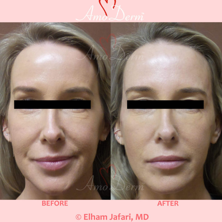 Liquid Facelift with filler injection in the temples