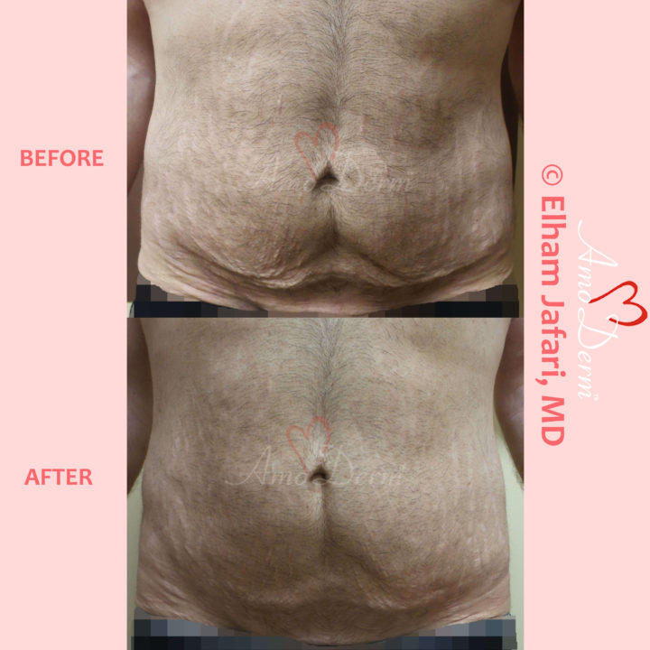 Skin tightening, body sculpting and body contouring with Venus Freeze (radiofrequency) in abdomen