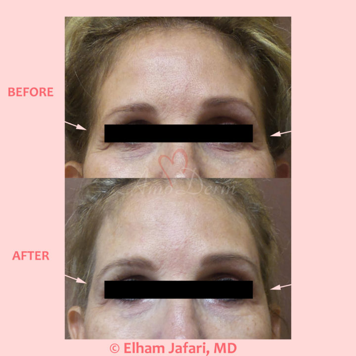 Volume restoration in temples with filler injection (Juvederm, Restylane, Voluma, Sculptra)
