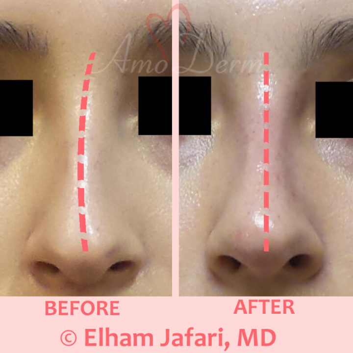 Nonsurgical nose job to correct nose deviation, bumps or humps and sculpting nose bridge