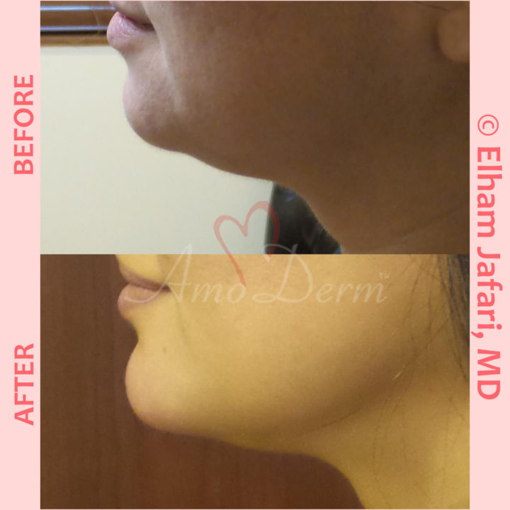 Non surgical reduction of double chin with Kybella & Chin augmentation with filler injection (Voluma, Bellafill, Radiesse)