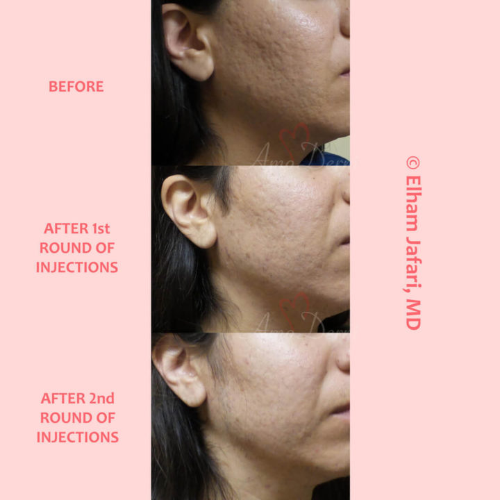 Treatment of acne scarring and other types of scars with Bellafill injection